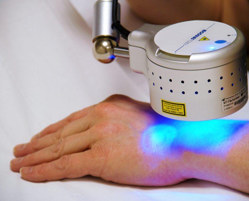 Laser Therapie pols